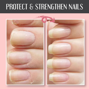 🎁BUY 1 GET 1 FREE - Nail Repair Protection Gel💅