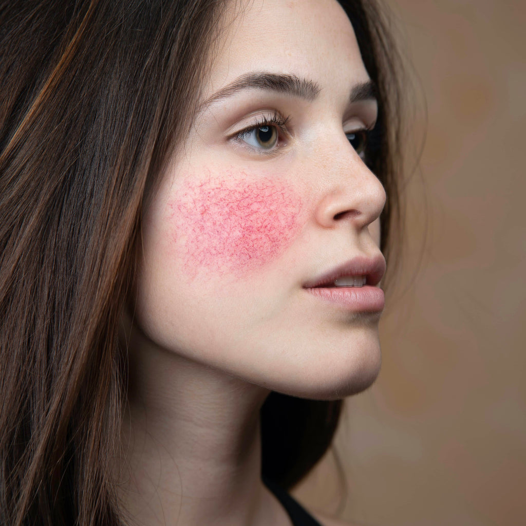 Woman's face showing rosacea on cheeks