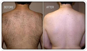 vicmun hair removal cream \u2013 natural cure expert Tanning Lotion Before and After vicmun hair removal cream