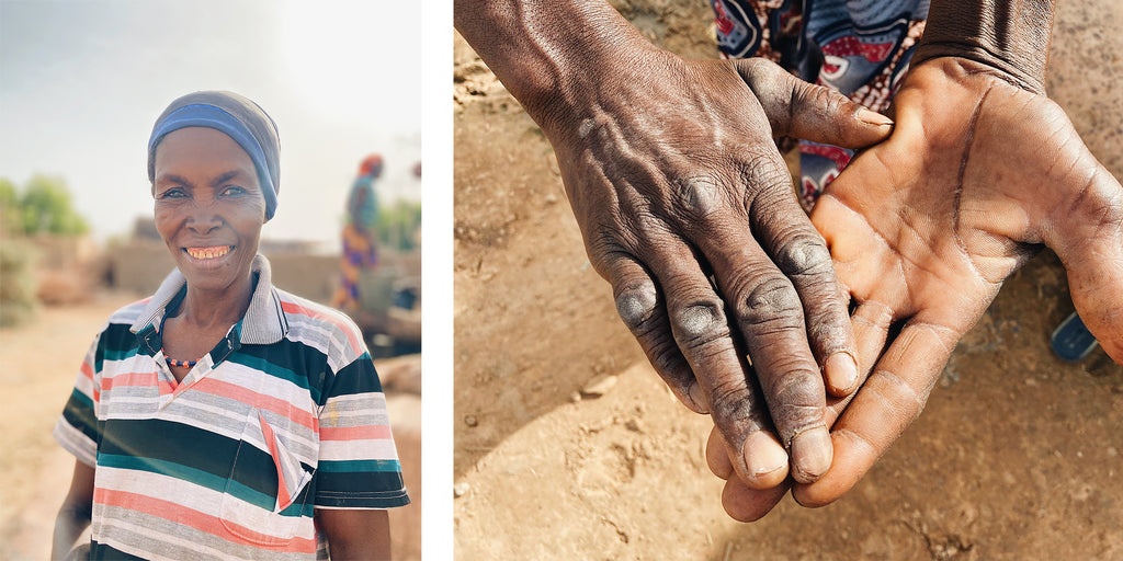 A woman in Niger shows her calloused hands from hauling dirty water out of a deep, open well. | neverthirst in Niger