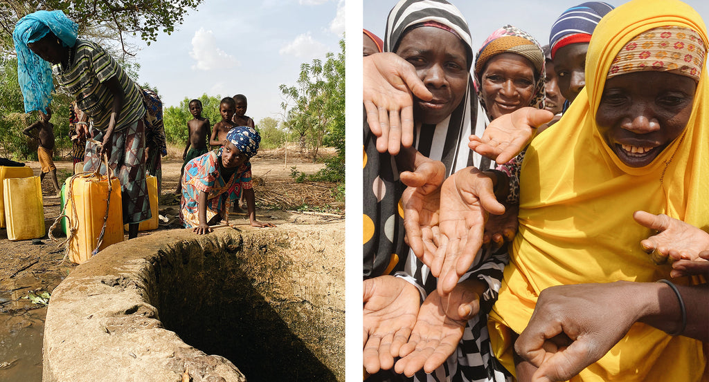 An open, contaminated well in Niger & women who have calloused hands | neverthirst in Niger
