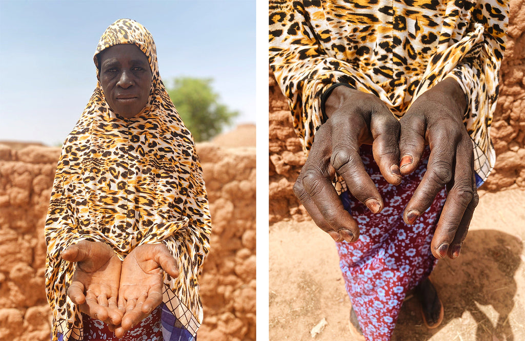 A woman in Niger shows her hands | neverthirst in Niger