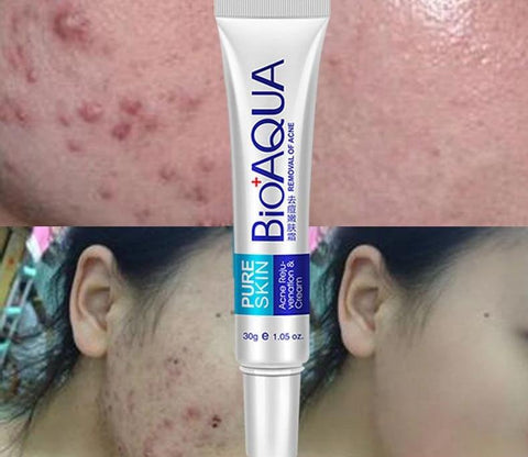 Bioaqua Best Pimples Acne Treatment Shrink Pores Remove Pimples and Acne Scar, Blackhead and Whiten the Skin
