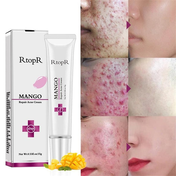 Fast Action Acne and Pimples Removal Cream with Advanced Skin Repair Formula to remove Spots Scar Blackhead Pores and skin Whitening