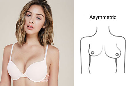 breast shape asymmetric