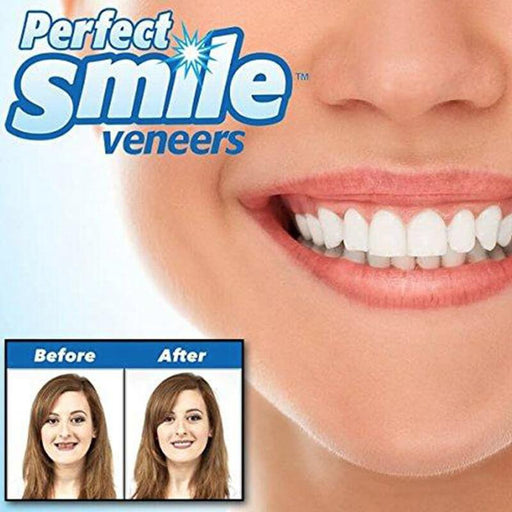 INSTANT SMILE VENEER -Upper & Lower Include