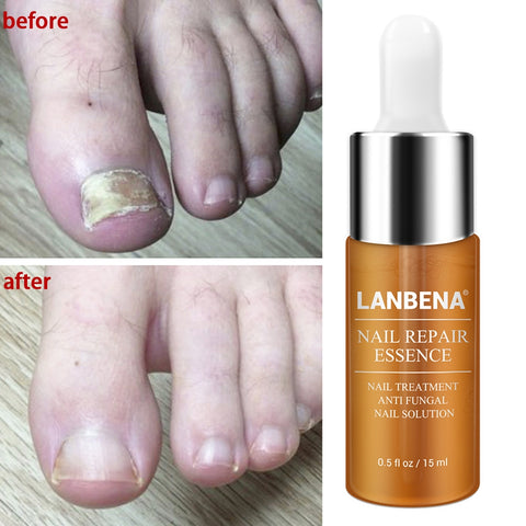 Lanbena Nail Repair Mask