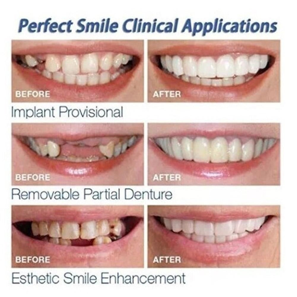 Whitening Snap Perfect Smile Teeth Fake Tooth Cover On Smile Instant Teeth Cosmetic Denture Care For Upper One Size Fits - ORION BEAUTYY