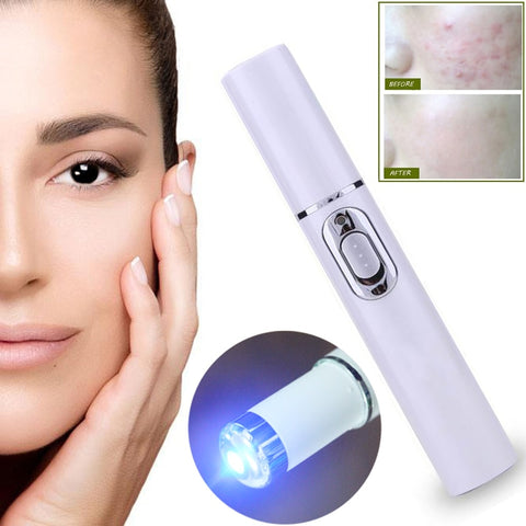 Laser Pen Portable Acne Wrinkle Removal Machine Durable Soft Scar Remover Blue Light Therapy Pen Massage