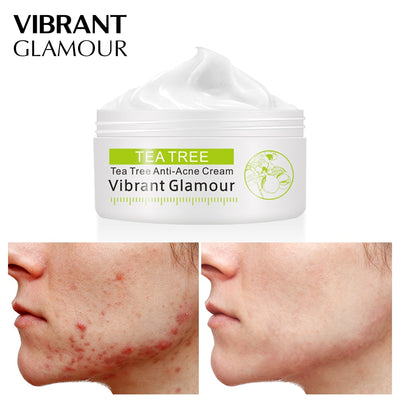 VIBRANT GLAMOUR Tea Tree Anti-Acne Face Cream Oil Control Shrink Pores Acne Cream Nourish Whitening Acne Scar Remove Skin Care