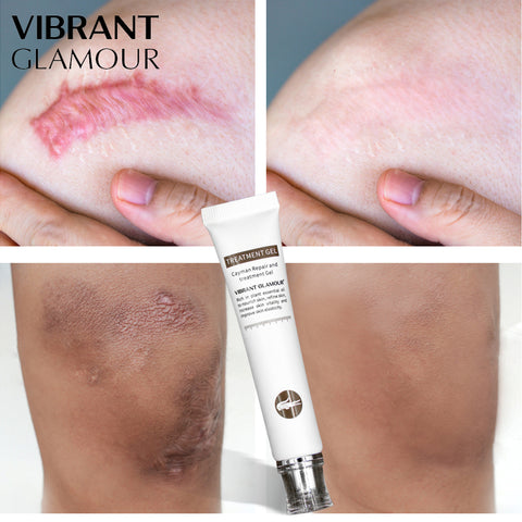 VIBRANT GLAMOUR Repair Scar cream Removal Scars for face or body