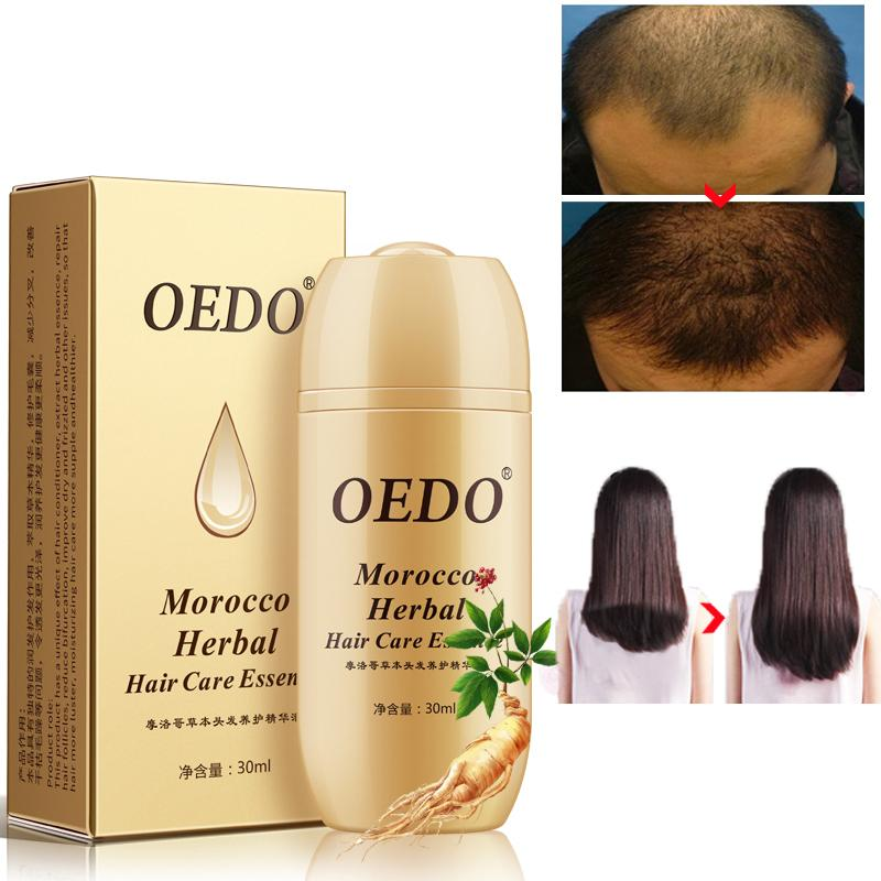 Fast Powerful Hair Growth Serum Repair Hair Root Fonsany