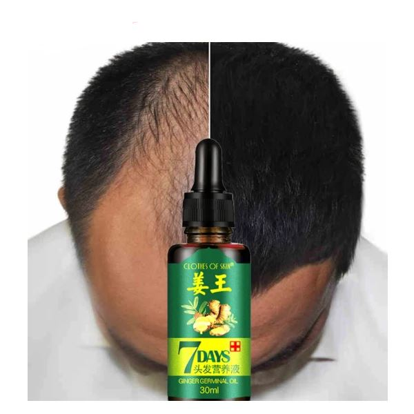 Natural 7Days Hair Regrowth Serum Health & Beauty Fonsany