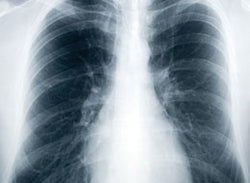 Tuberculosis - Old Disease, New Threat - Training Network