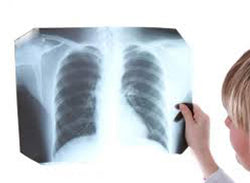 Tuberculosis in the Healthcare Environment
