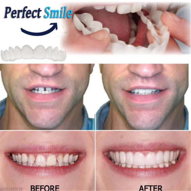 Perfect Smile Veneers - SURPRISEYOU