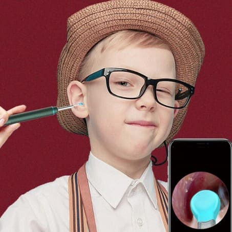 SURPRISEYOU - Smart Visual HD Ear Cleaning Rod