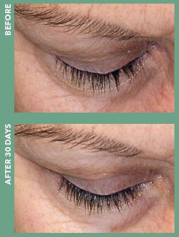 Revita-Eye Lash Treatment