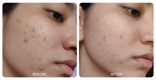 Anti Acne Results Before and After