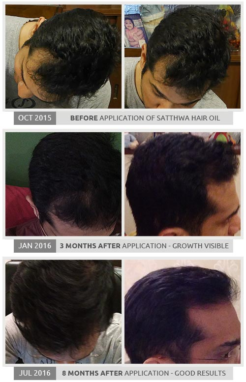 How to Regrow Hair?