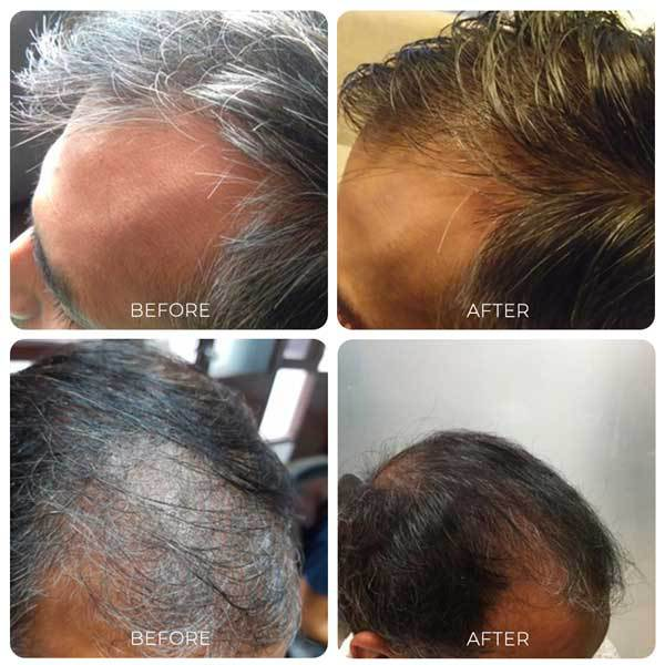 Kalika Hair Oil Results Before and After