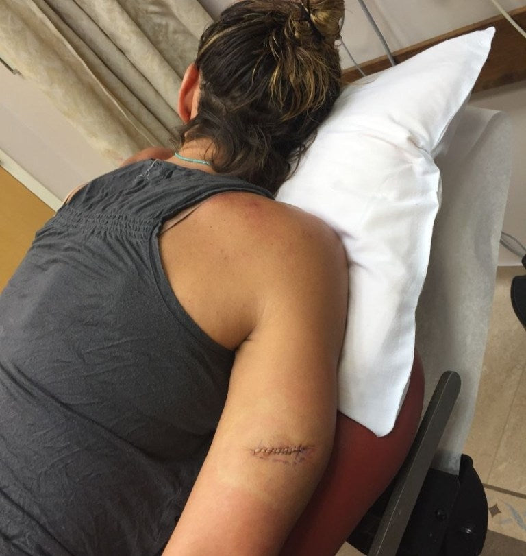 Image of Summer's upper arm post surgery, after having an additional melanoma removed.
