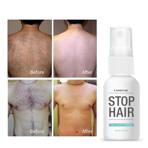Hair Growth Stopper Serum