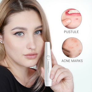 Acne Pen Wrinkle Removal Device