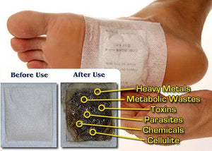 Ginger Detox Foot Patch (10 piece set)