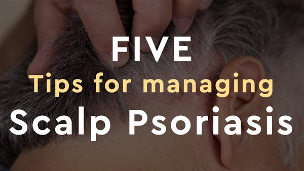 5 Tips for Managing Scalp Psoriasis - Psoriasis Honey