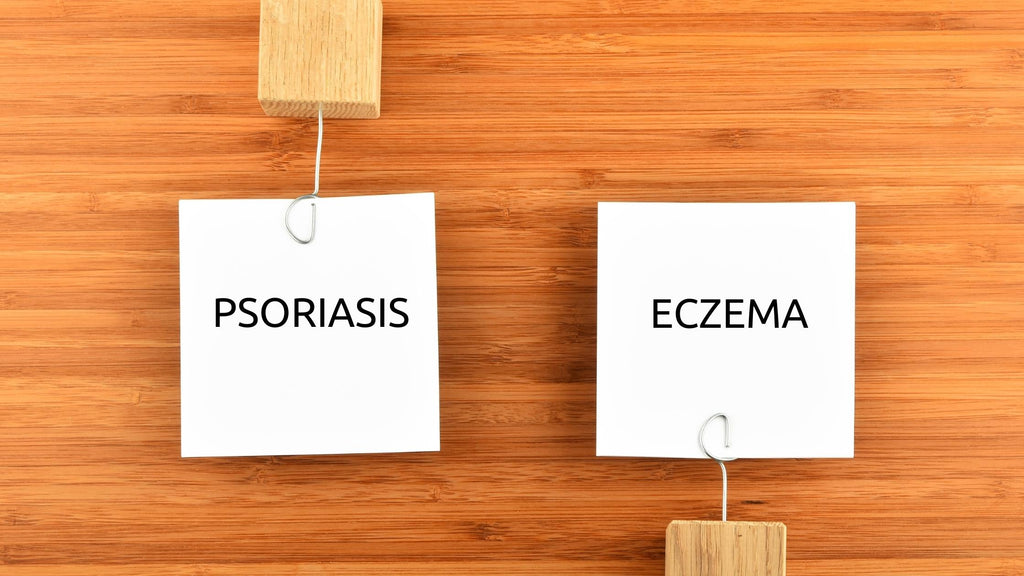 psoriasis and eczema difference