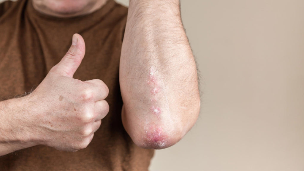 PSORIASIS WHAT WORKS WHAT DOESN'T WORK