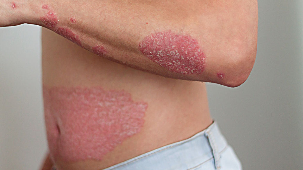 Is all Psoriasis the same?