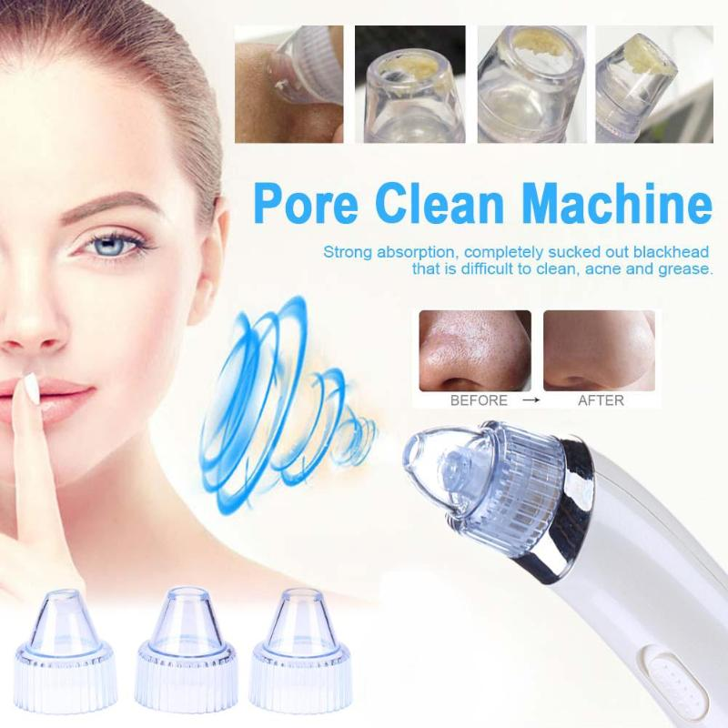 Electric Vacuum Pore Cleaner for $29.95