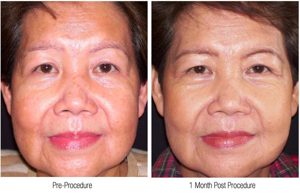 Core Brightening Peel - Before and After Photo Case 1