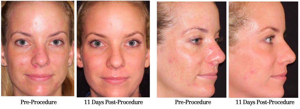 Core Brightening Peel - Before and After Photo Case 2