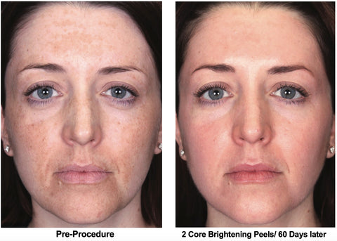 Core Brightening Peel - Before and After Results