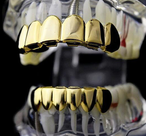 Image of Goldplated Grillz Set