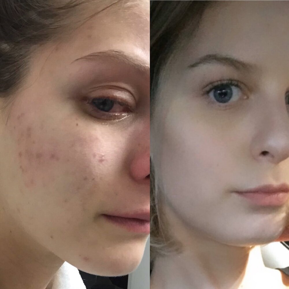 Getting to the root cause of acne