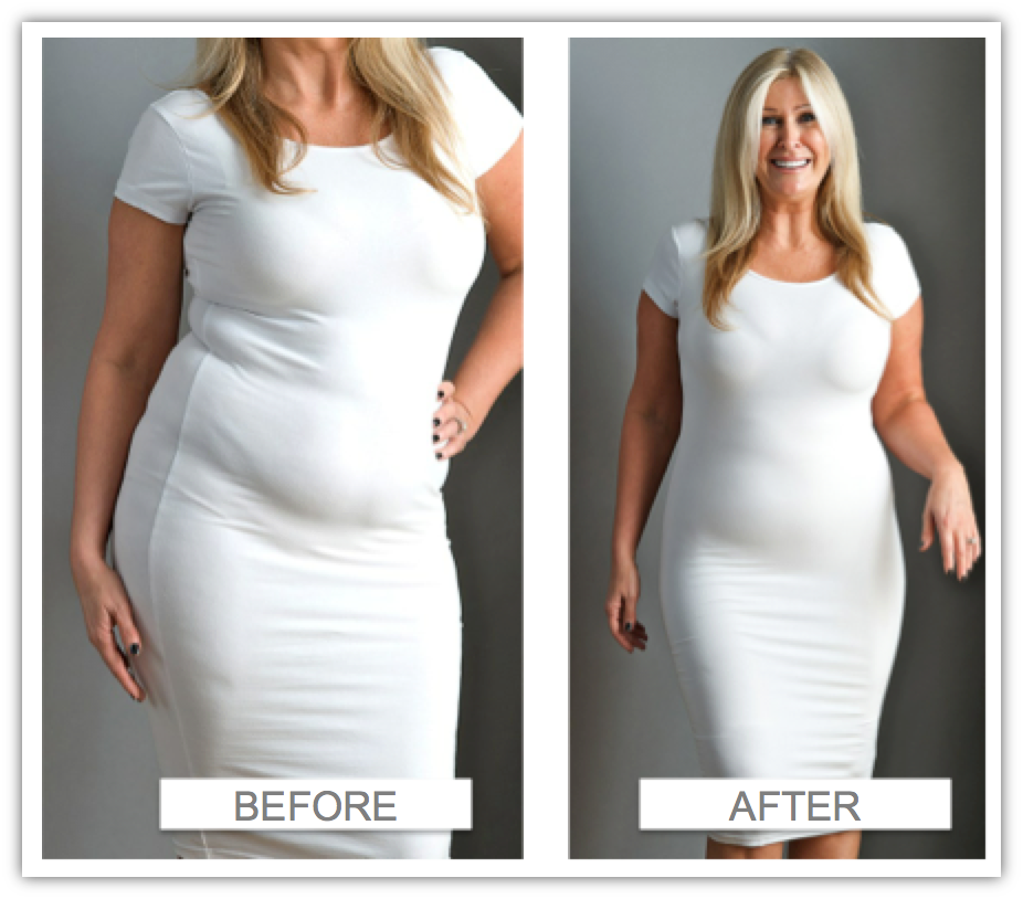 Women Wearing A Beautiful White Dress With Camisole Body Shaper Before And After