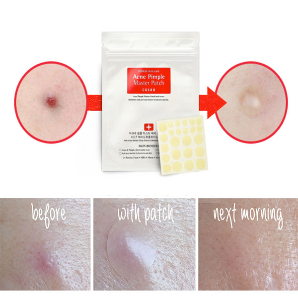 COSRX™ Acne Pimple Master Patch