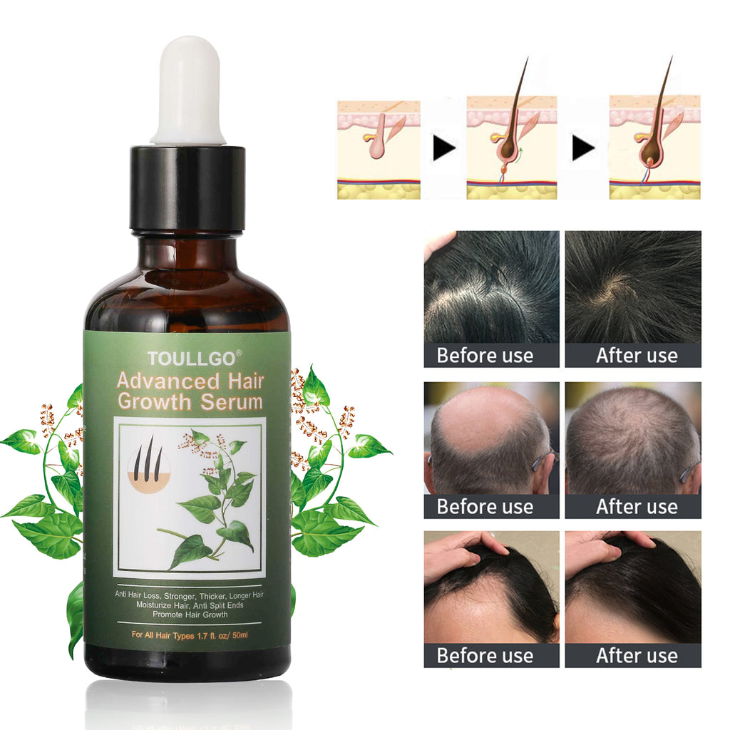 ToullGo-Hair Growth Serum, Hair Loss Treatments for Thicker Longer Fuller Healthier Hair