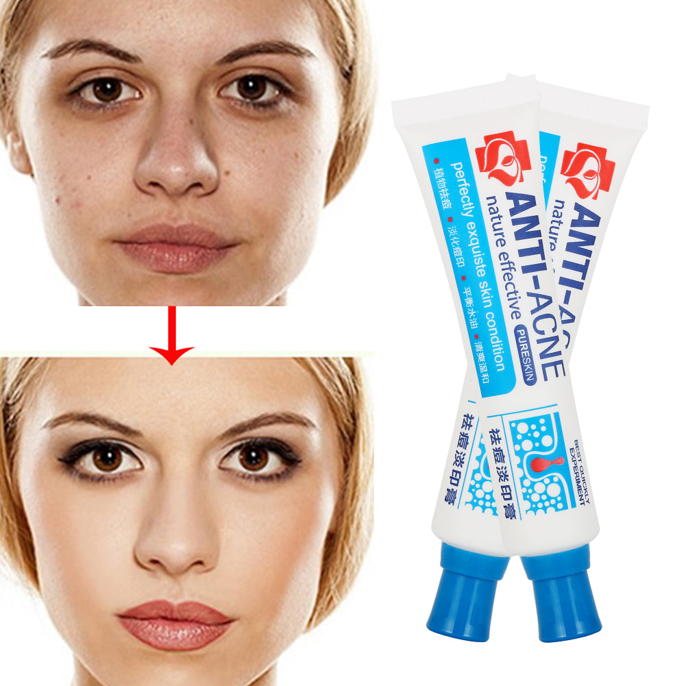 ToullGo-Acne Cream, Balance Water and Oil, Reduce in Blackheads