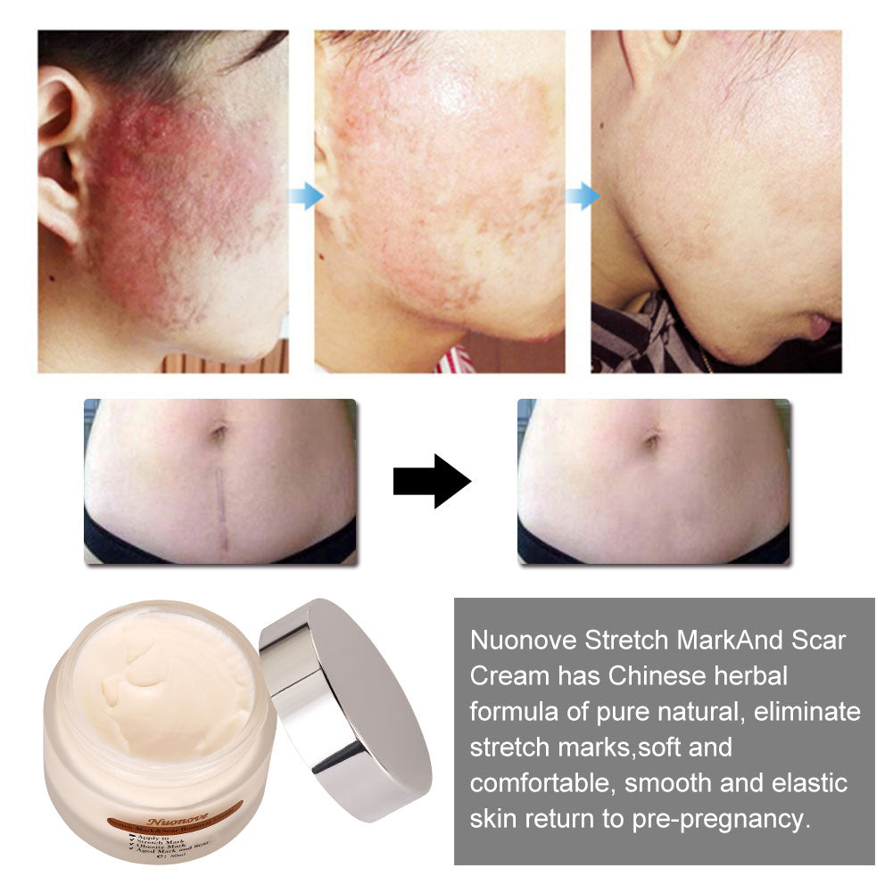 ToullGo-Stretch Marks Cream Scar Cream For Women After Pregnancy