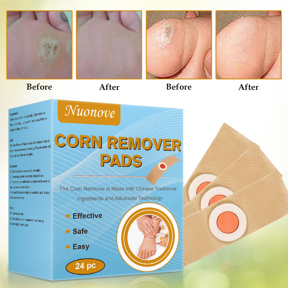 ToullGo-Corn Remover Pads,It is a Better Solution for People Who Suffer The Pain of Corn & Callus
