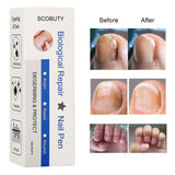 ToullGo-Toenail Fungus Treatment, Fungal Nail Gel