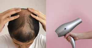 Dealing with hair loss problem? Here, we tell you 3 ways to deal with it!!!