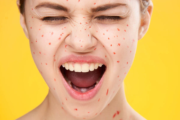 Pimples: How Long Do They Last and How Can You Manage Them?