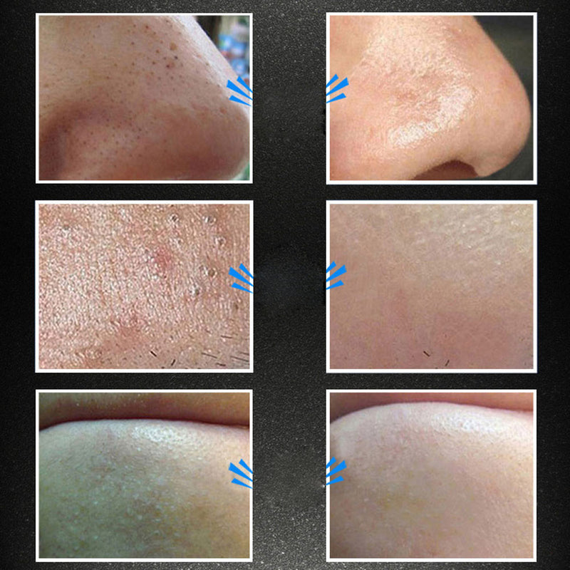 Remove Mineral Mud Blackhead Pore Cleansing Cleaner Removal Mask Membranes - getthatglow