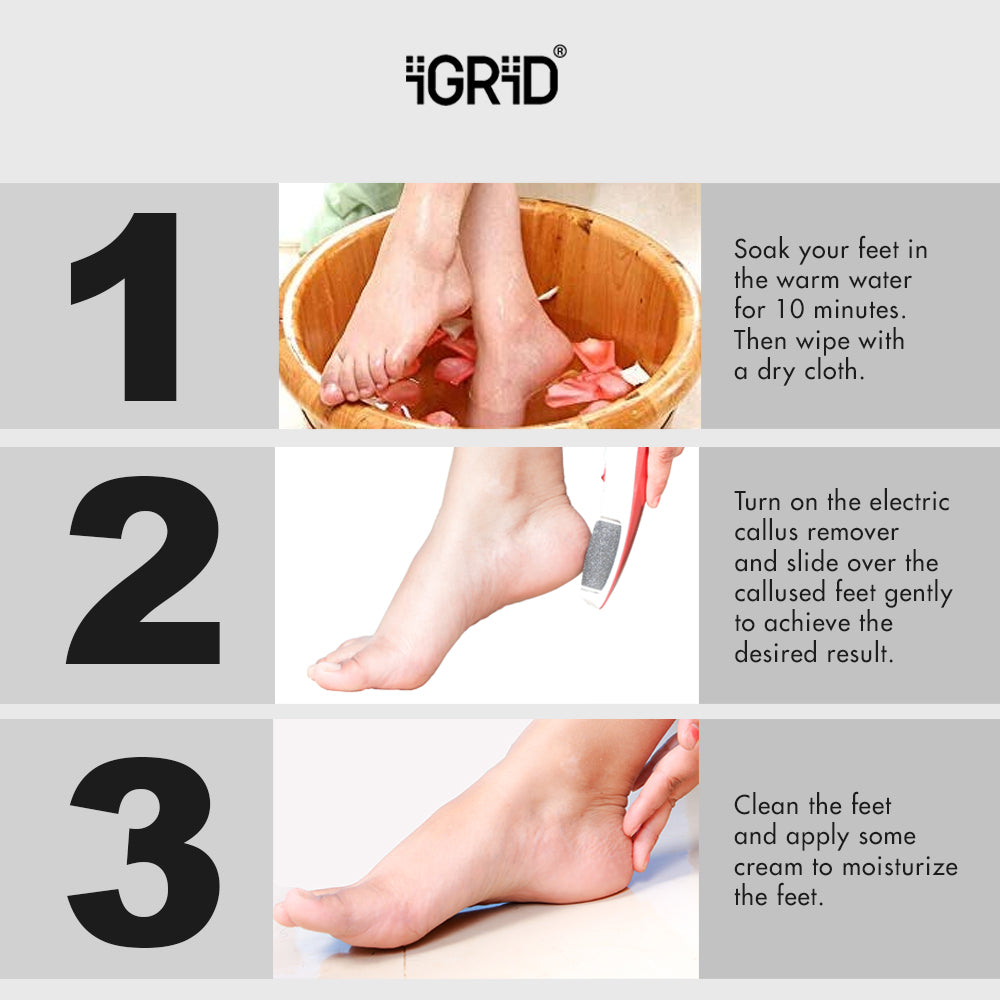 iGRiD Rechargeable Pedicure Device| Callus & Dead Skin Remover | Feet Care |